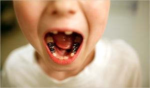 Fotografia de Damon Winter, do NYTimes, mostra os efeitos nocivos que a água da rede de abastecimento da Virgínia Ocidental teria provocado na arcada dentária de uma criança de sete anos de idade